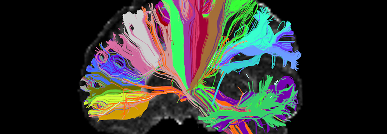 High Angular Resolution Diffusion Image (HARDI) of human brain showing long-distance connections. Credit: Viviana Siless and Anastasia Yendiki, MGH/Harvard and Boston Adolescent Neuroimaging of Depression and Anxiety, via NIH.